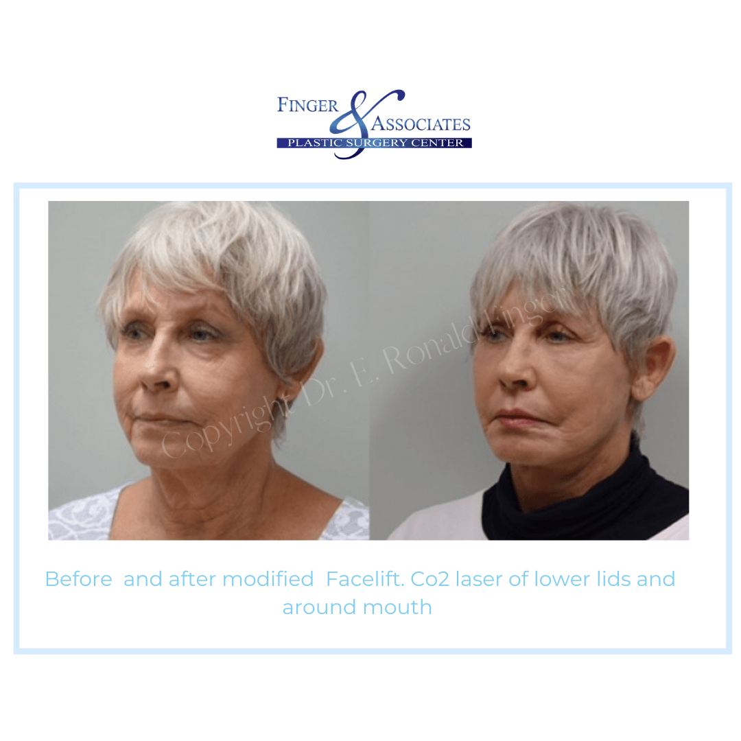 Before and After modified Facelift. Co2 Laser of lower lids and around mouth