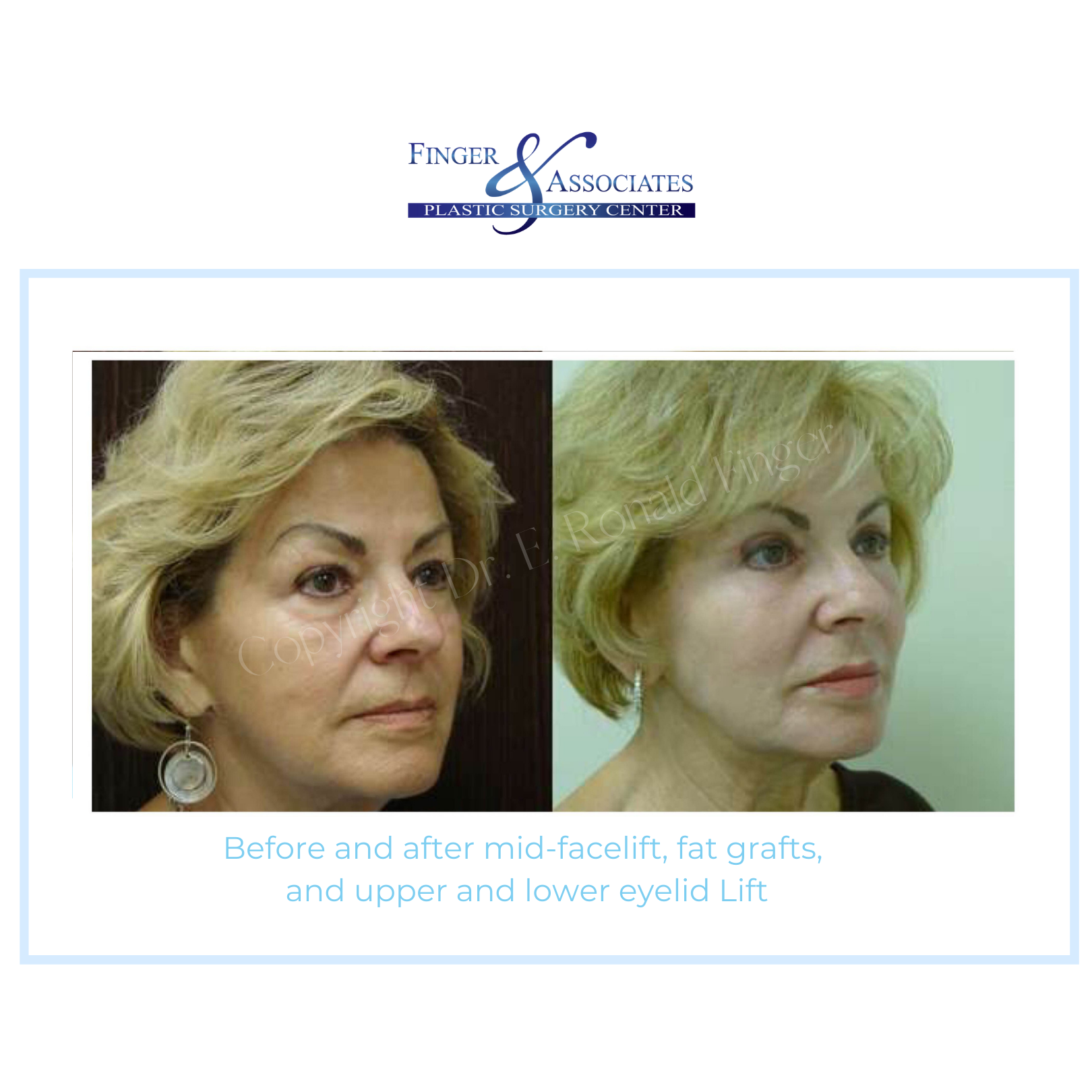 Before and after mid facelift and eyelid surgery