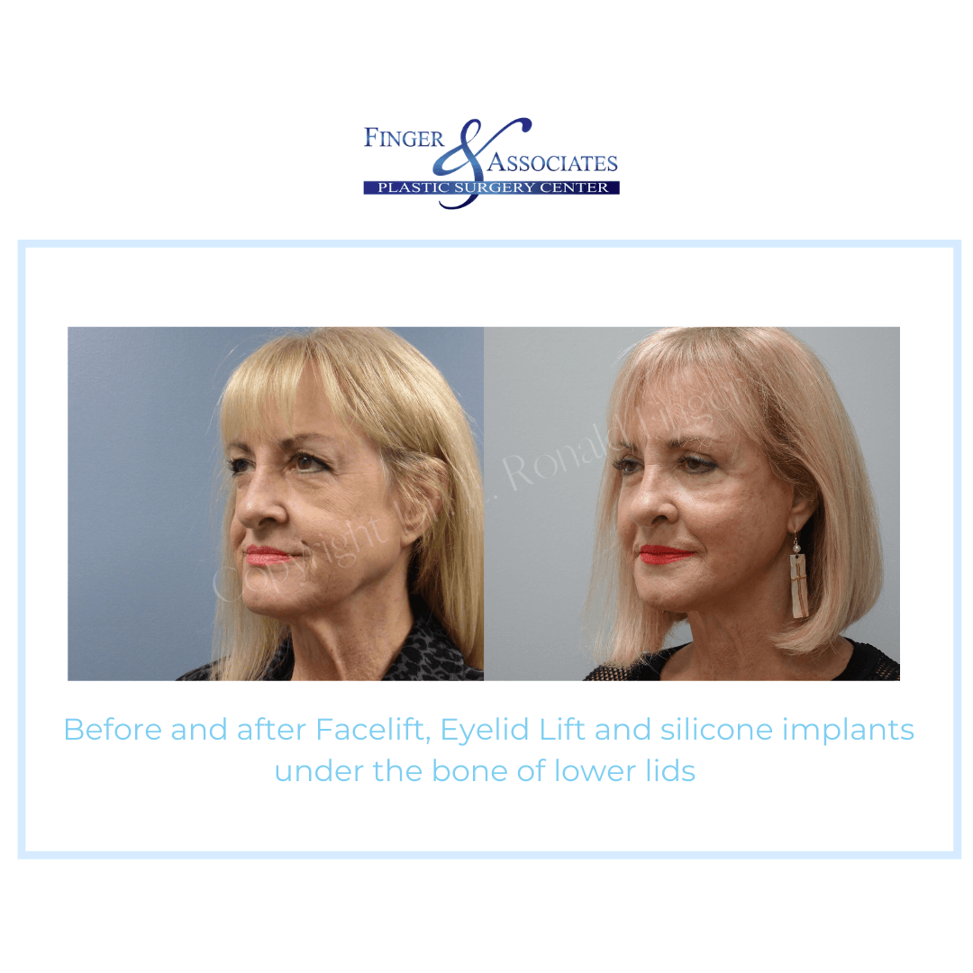 Before and After Facelift, Eyelid Lift and silicone implants under the bone of lower lids