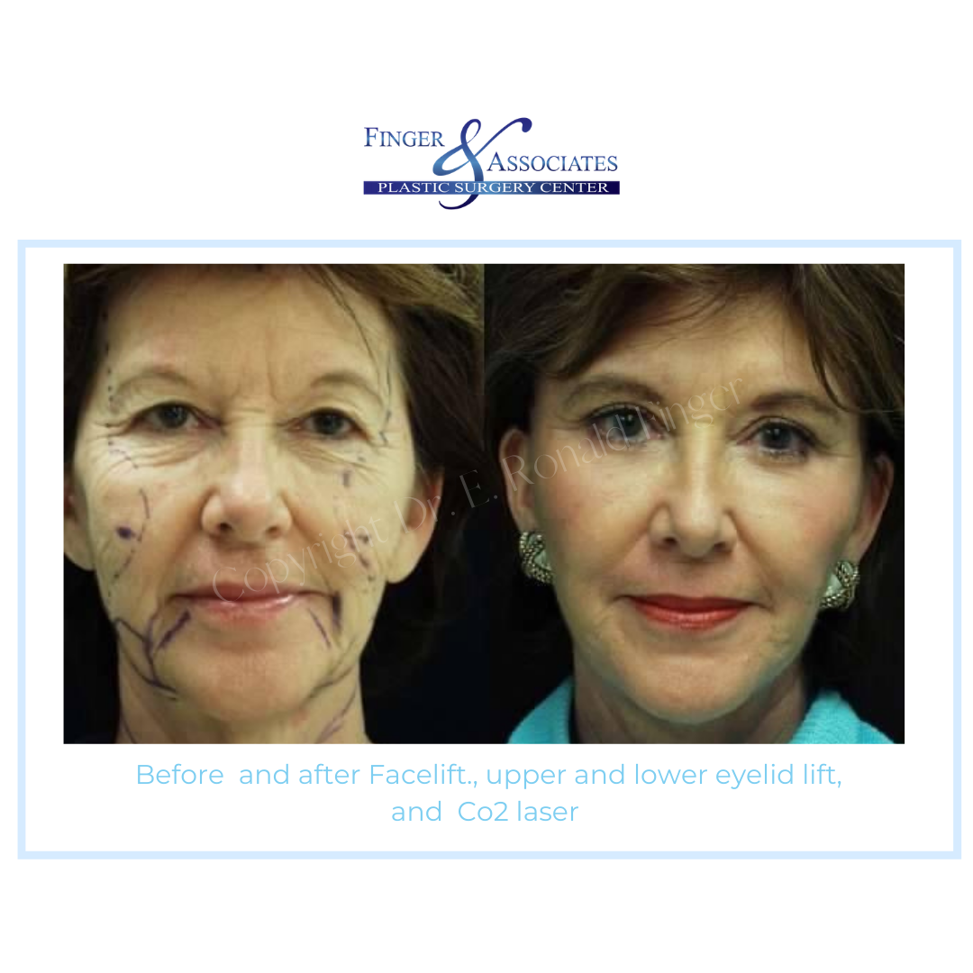 Before and after facelift and lower eyelid lift