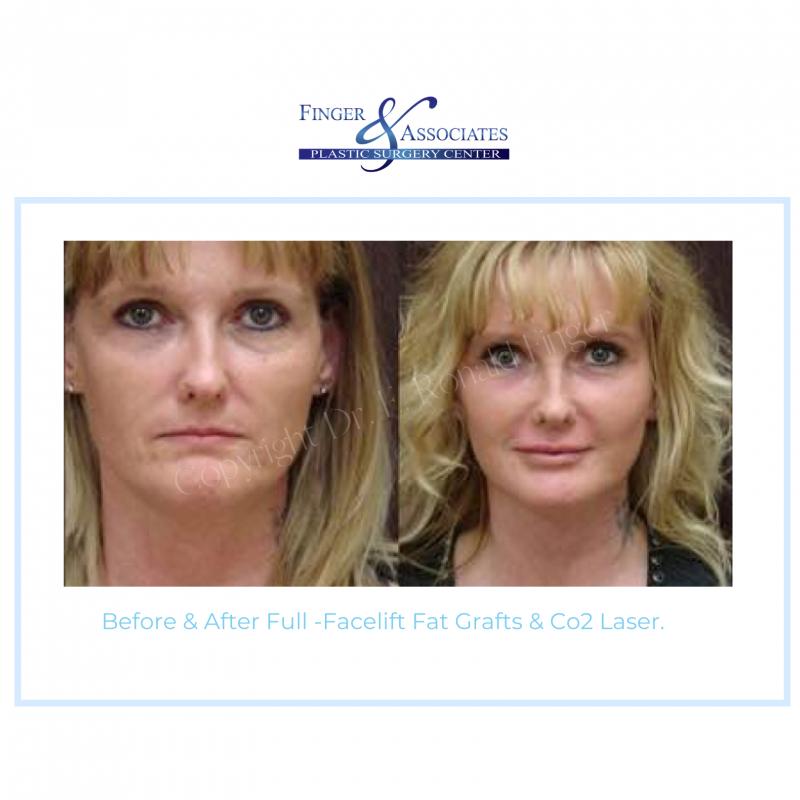 Before & After Full -Facelift Fat Grafts &Co2 Laser.