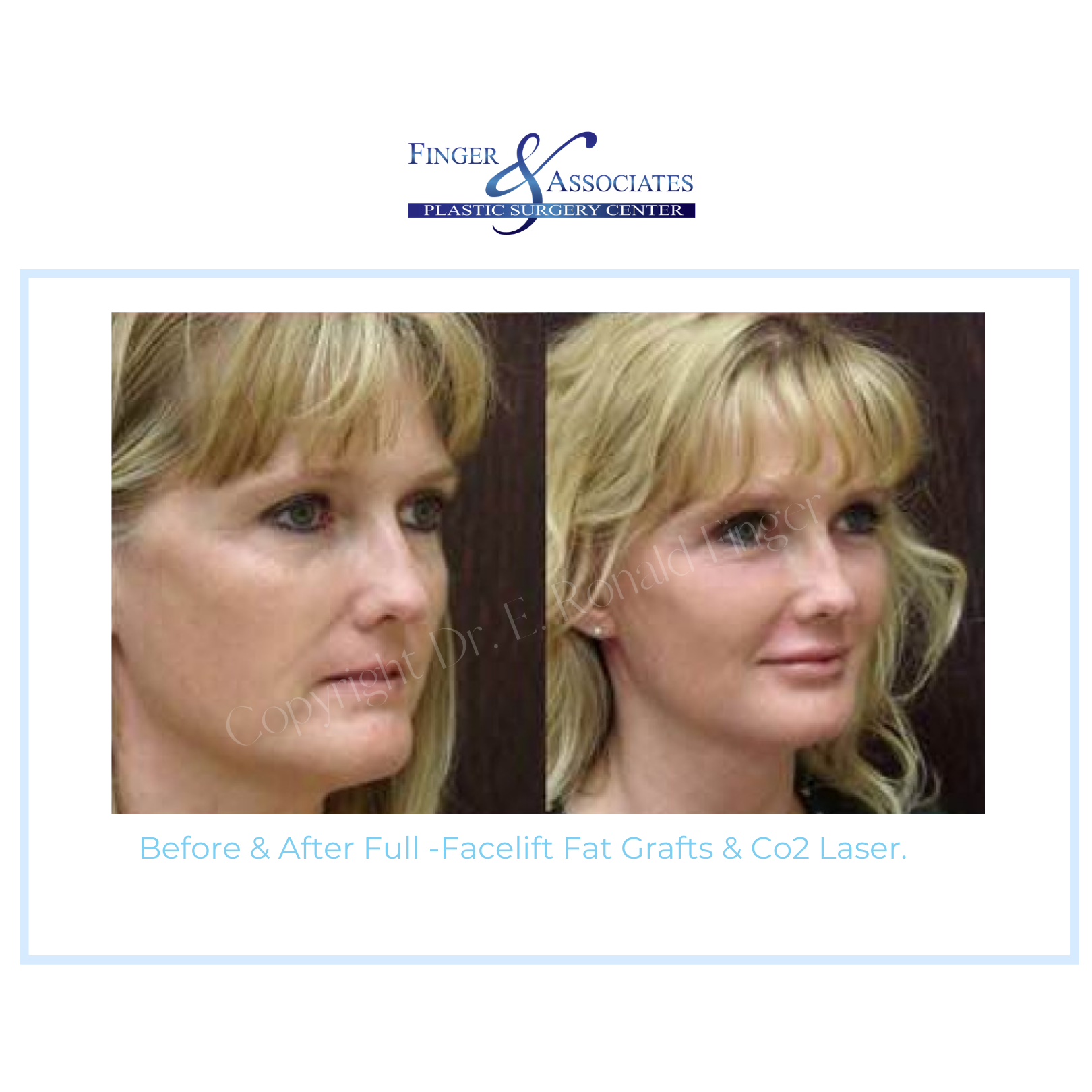 before and after facelift and eyelid lift