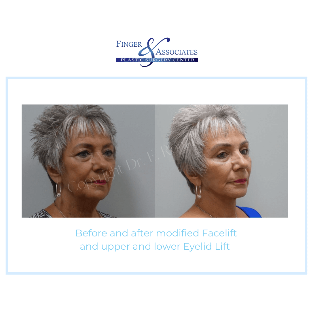 Before and After modified Facelift and upper and lower Eyelid Lift