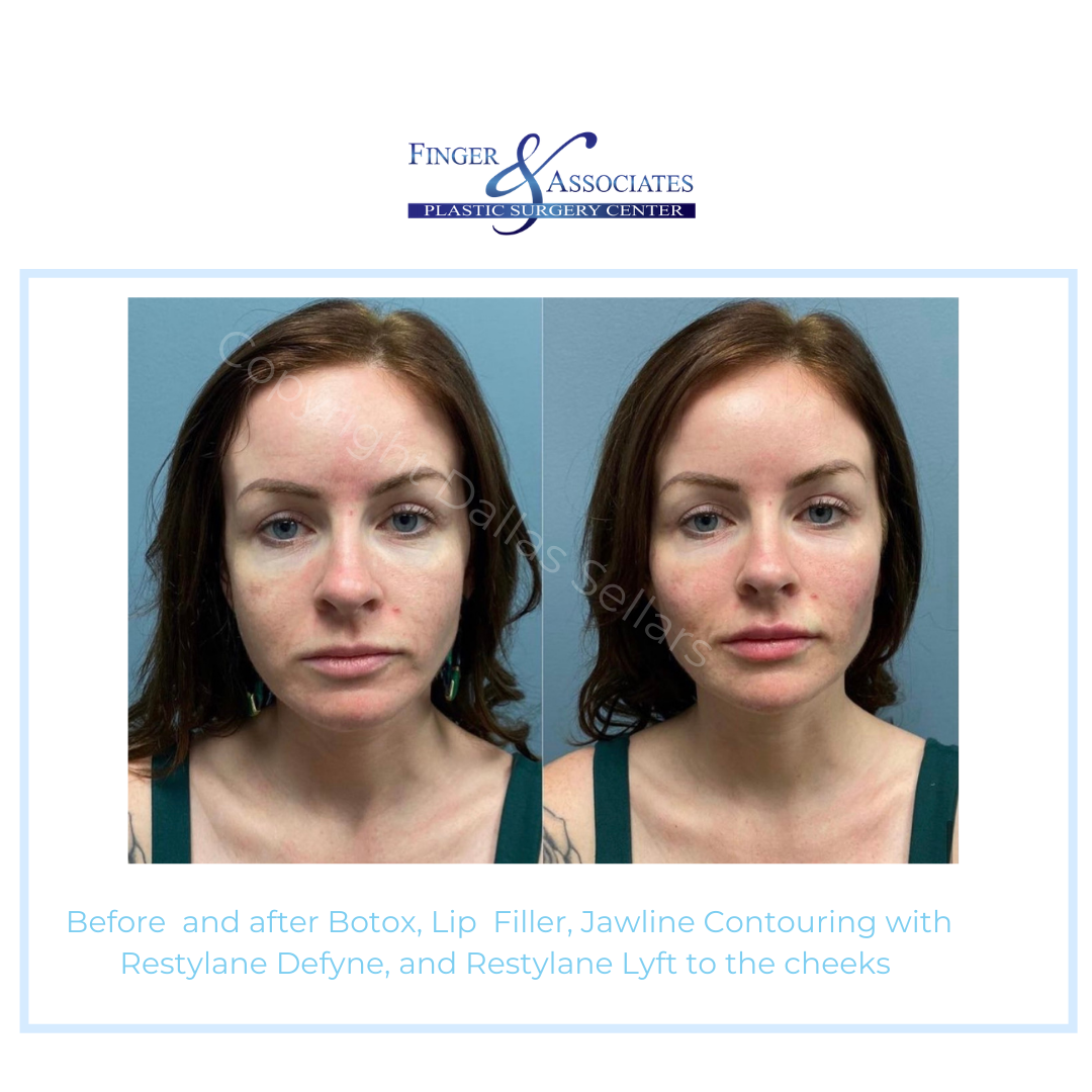 Before and after Restylane fillers