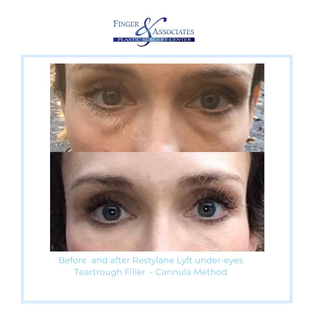 Before and after under eye filler by Dr. Finger