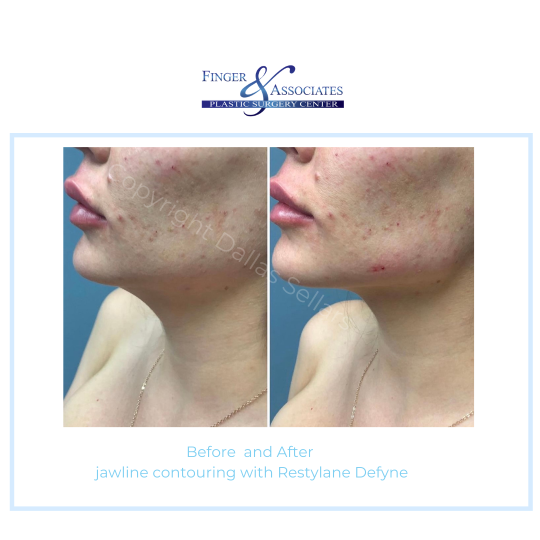 before and after Defyne jaw filler