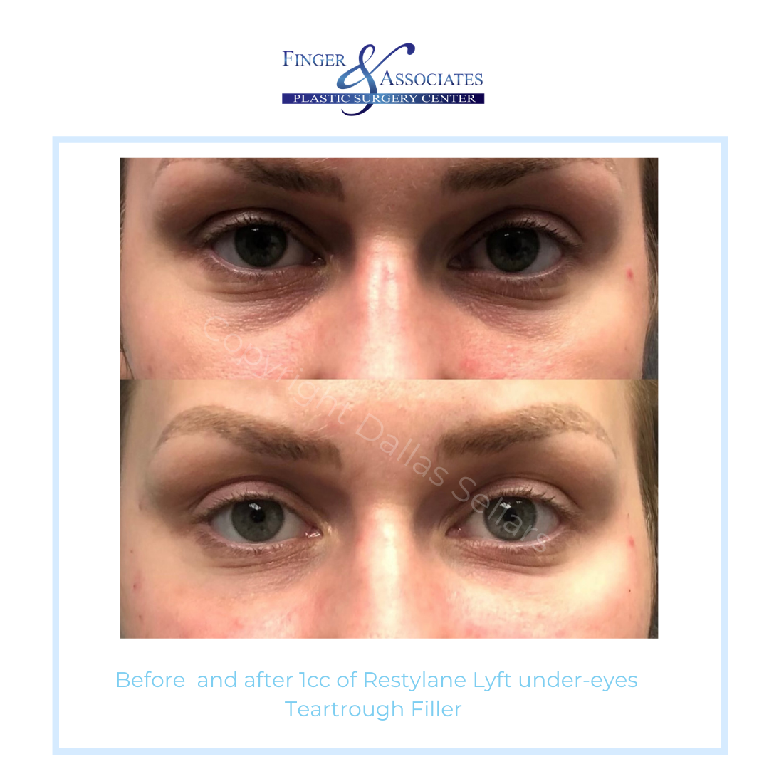 before and after undereye filler