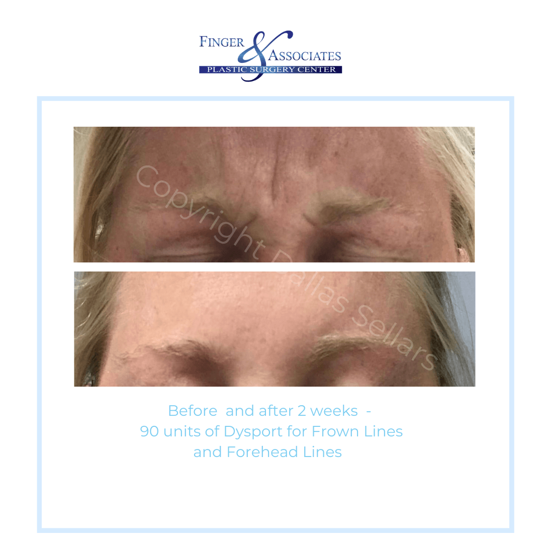 Before and After 2 Weeks - 90 units of Dysport for Frown Lines and Forehead Lines