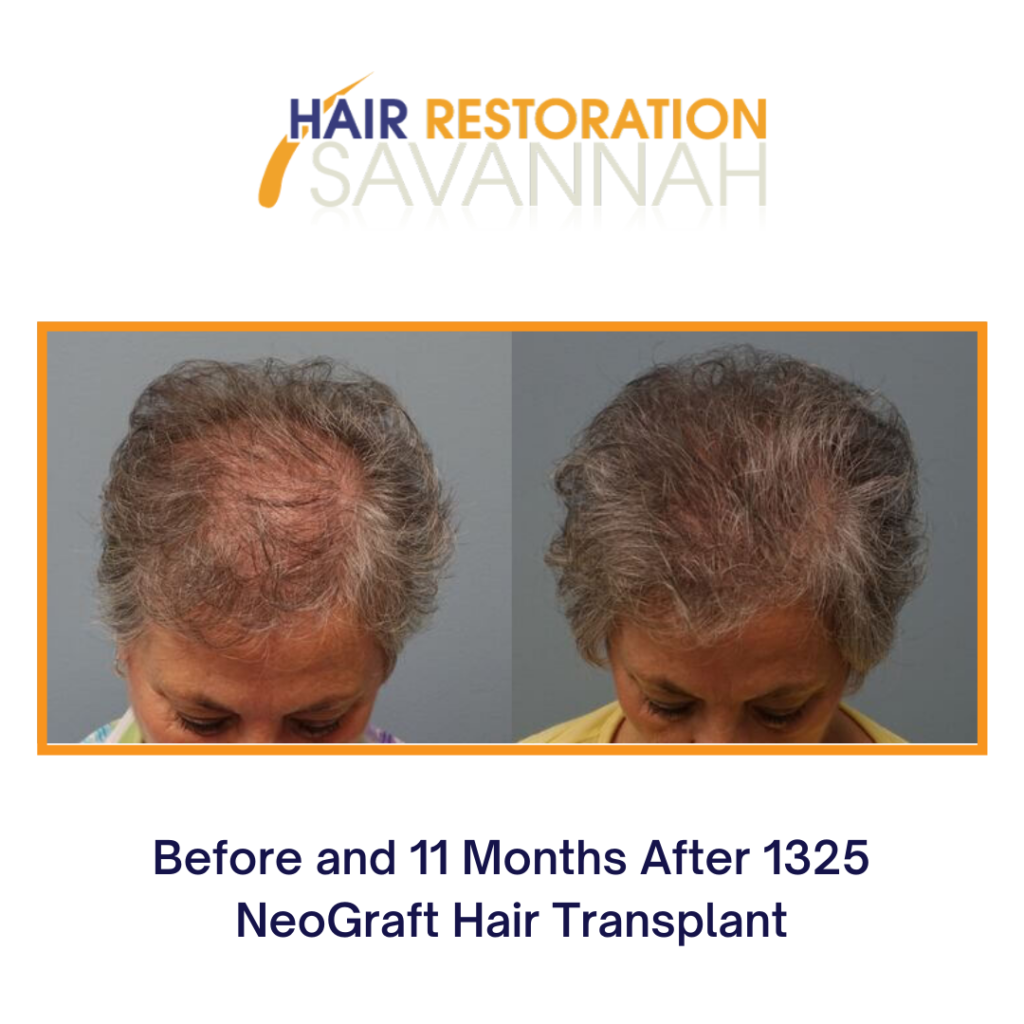 Before and after Neograft Hair Transplant