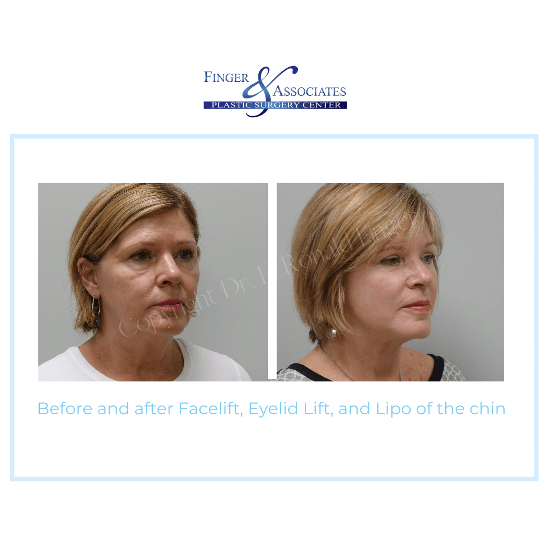 Before and After Facelift, Eyelid Lift and Lipo of the chin