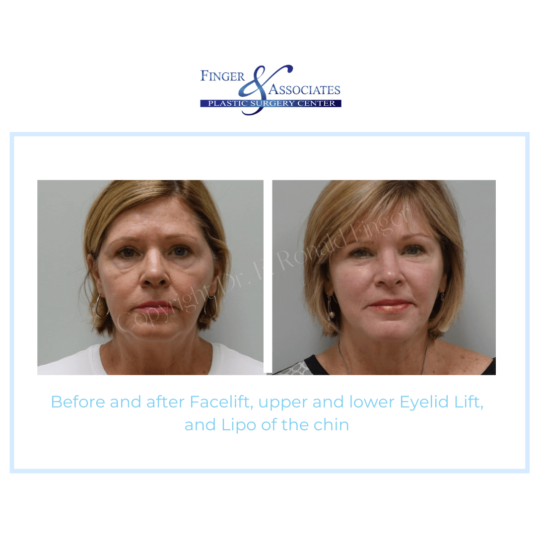 Before and After Facelift, upper and lower Eyelid Lift, and Lipo of the Chin