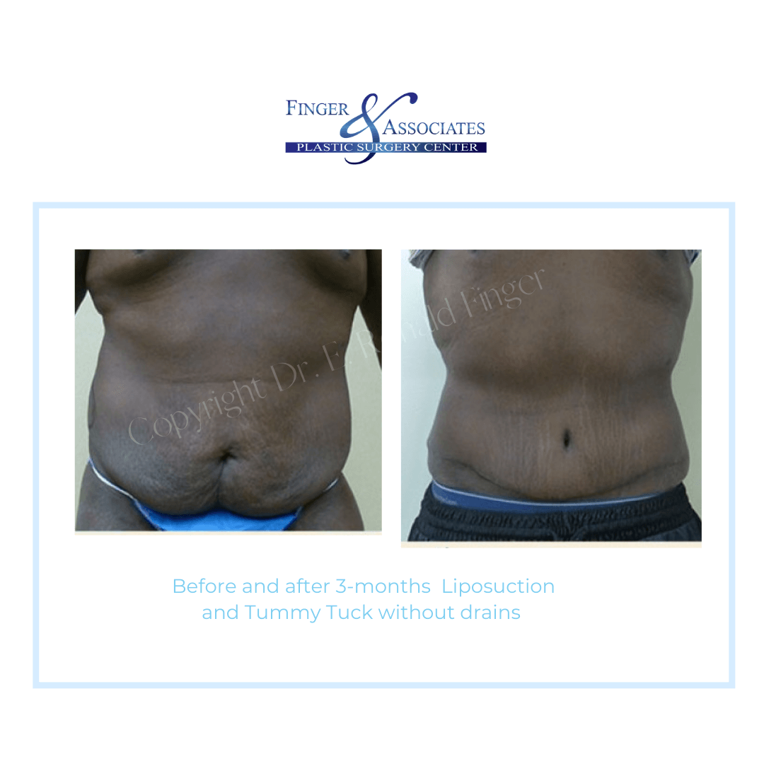 Before and After 3-months Liposuction and Tummy Tuck without drains