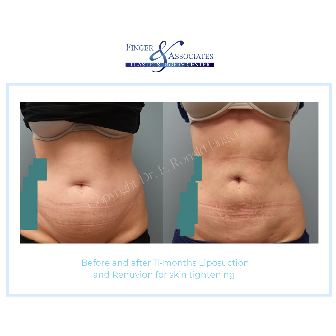 Before and after 11-months Liposuction and Renuvion for skin tightening