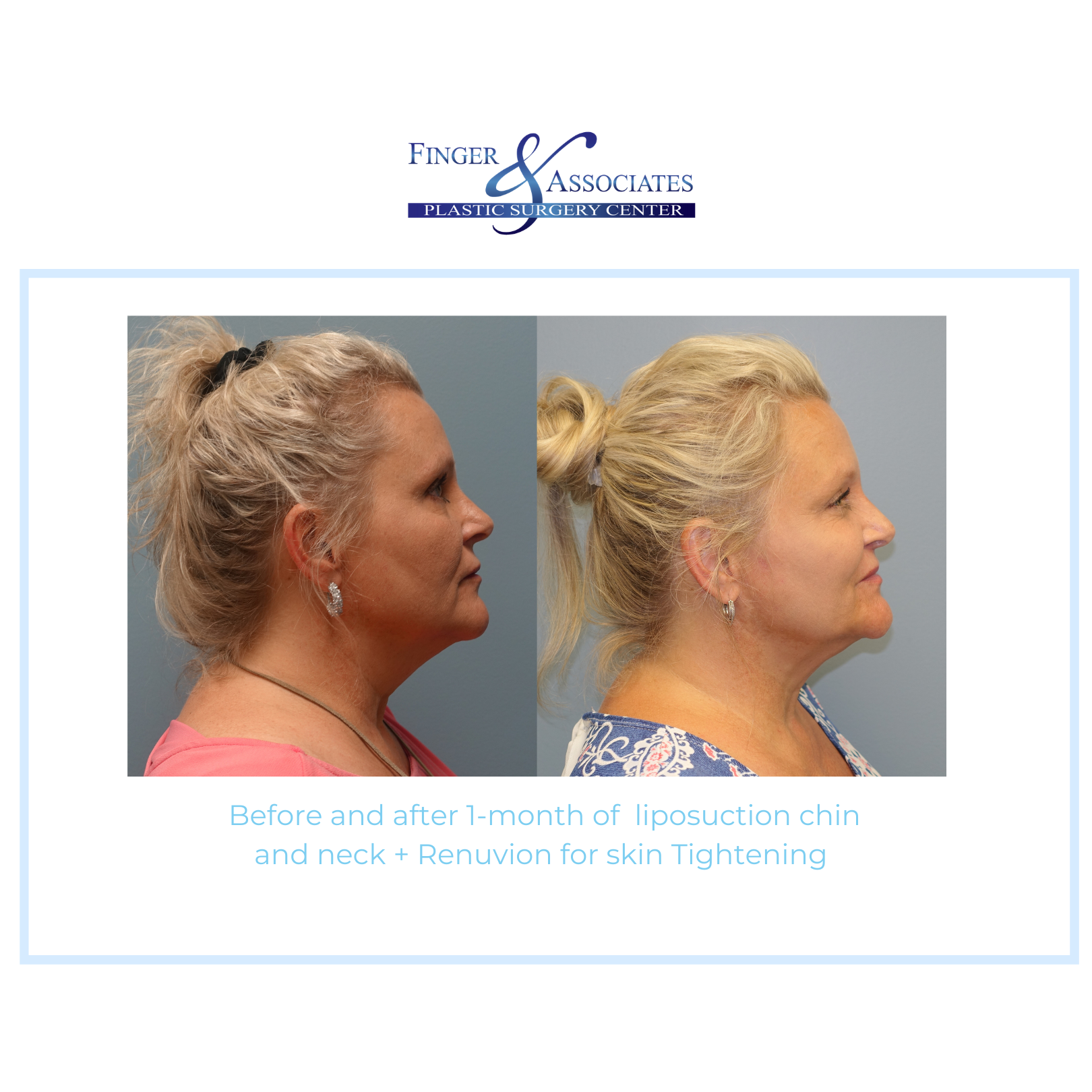Before and after Liposuction with Renuvion by Dr. E. Ronald Finger