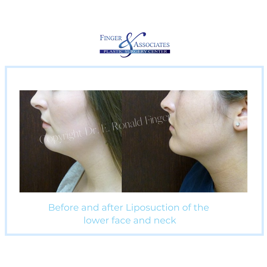 Before and After Liposuction of the lower face and neck