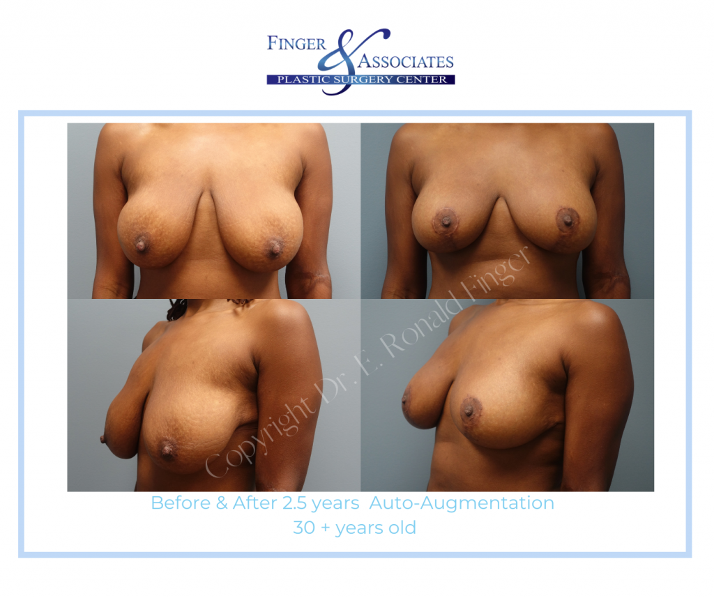 before and after auto augmentation