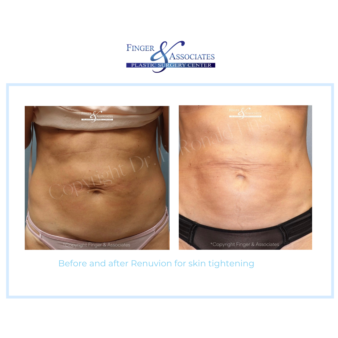 Before and After Renuvion for Skin Tightening