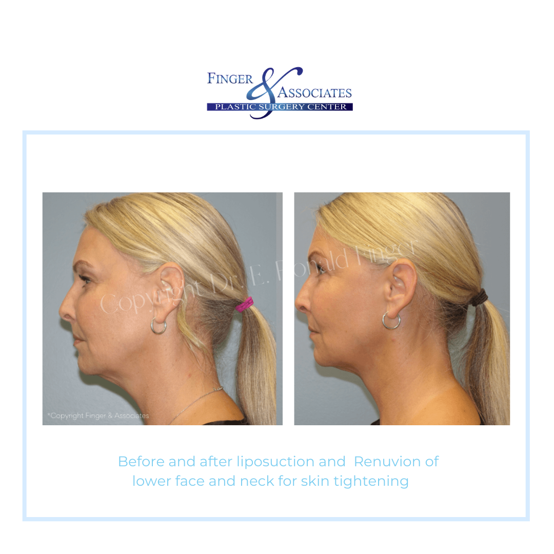 Before and After Liposuction and Renuvion of lower face and neck for Skin Tightening