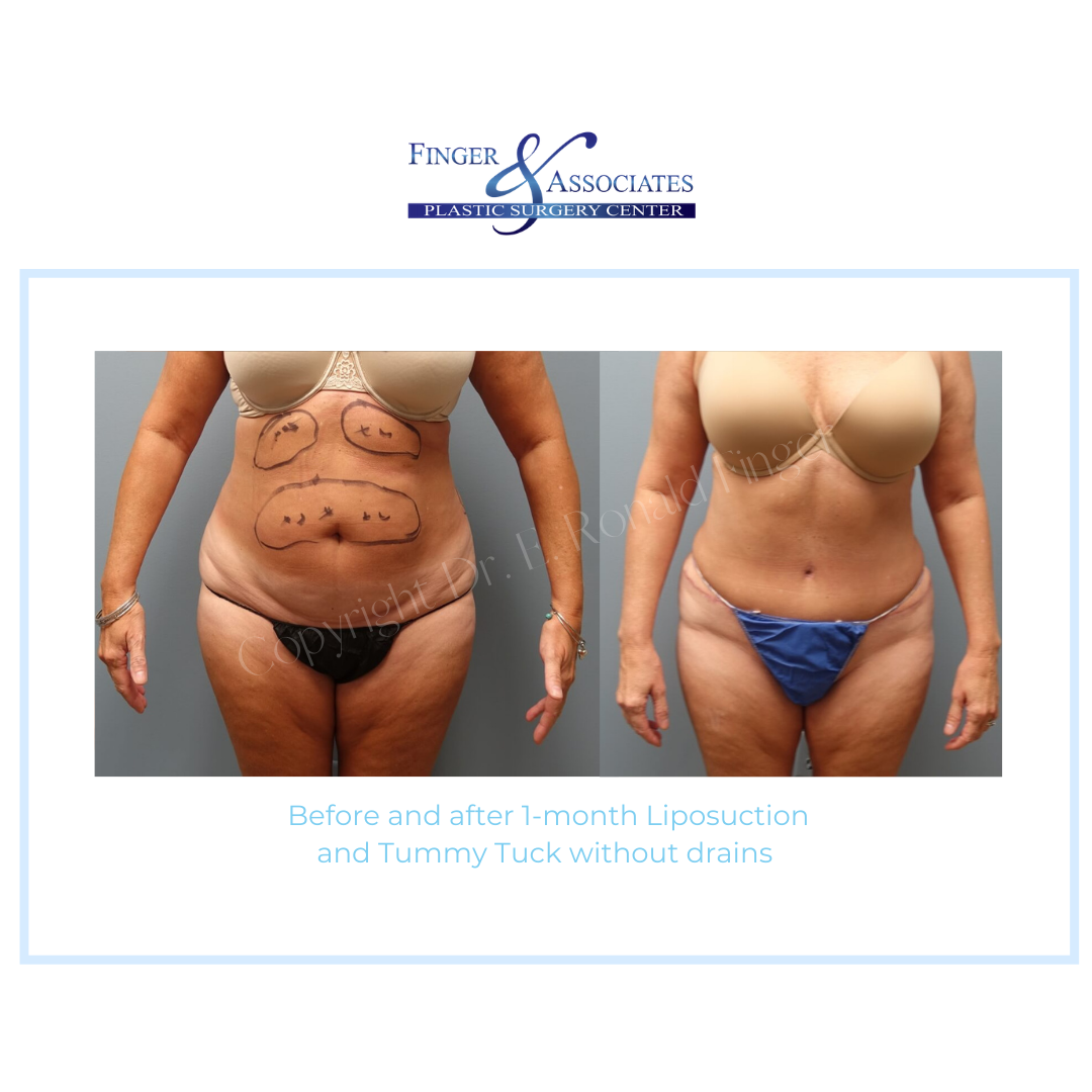 Before and after 1-month Liposuction and Tummy Tuck without drains