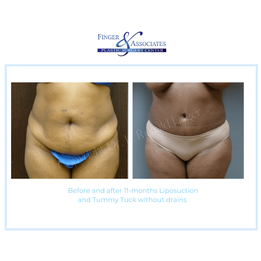 Before and After 11-months Liposuction and Tummy Tuck without drains
