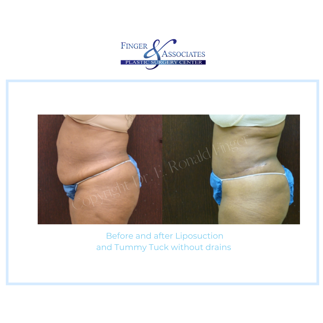 Before and After Liposuction and Tummy Tuck without drains