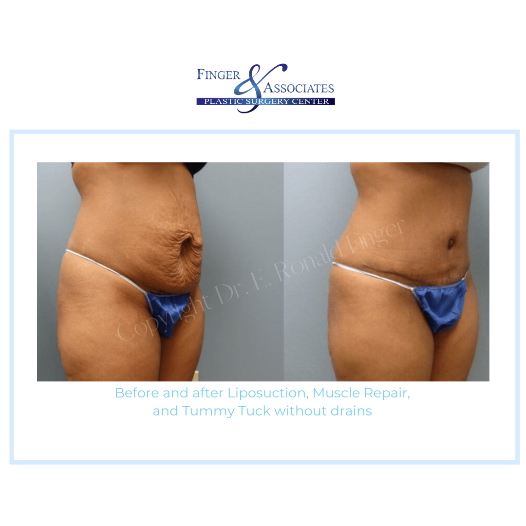 Before and After Liposuction, Muscle Repair and Tummy Tuck without drains