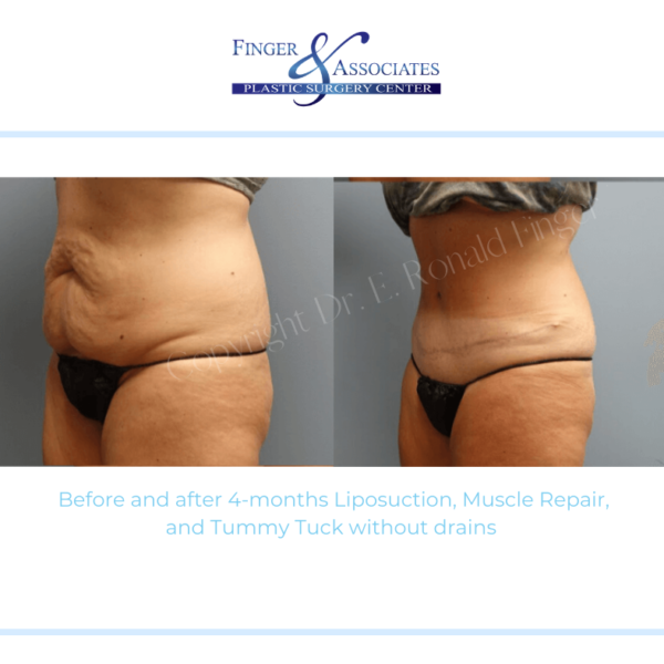 Before and after 4-months Liposuction, Muscle Repair, and Tummy Tuck without drains