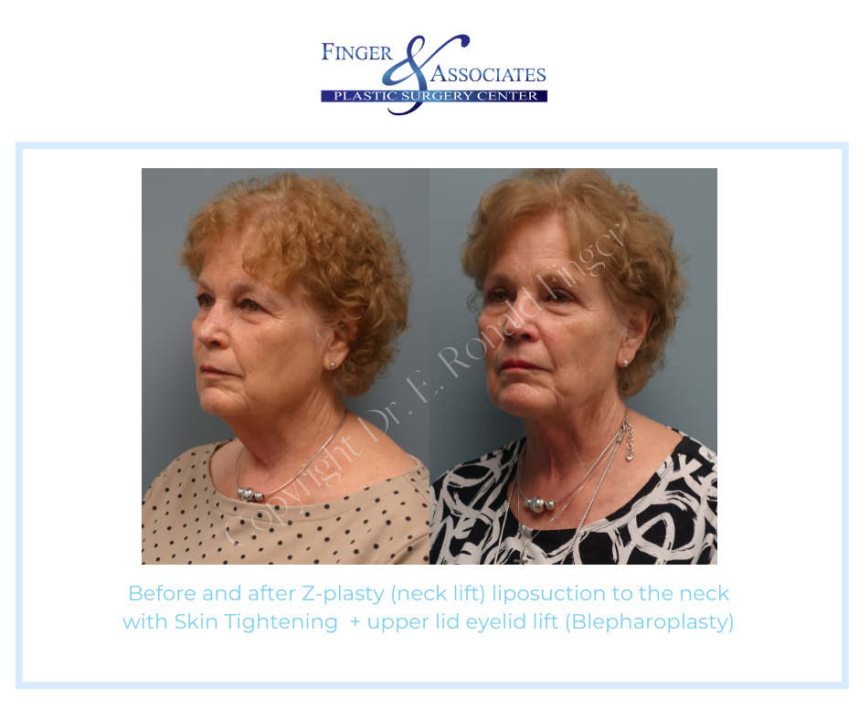 before and after z plasty with skin tightening and blepharoplasty
