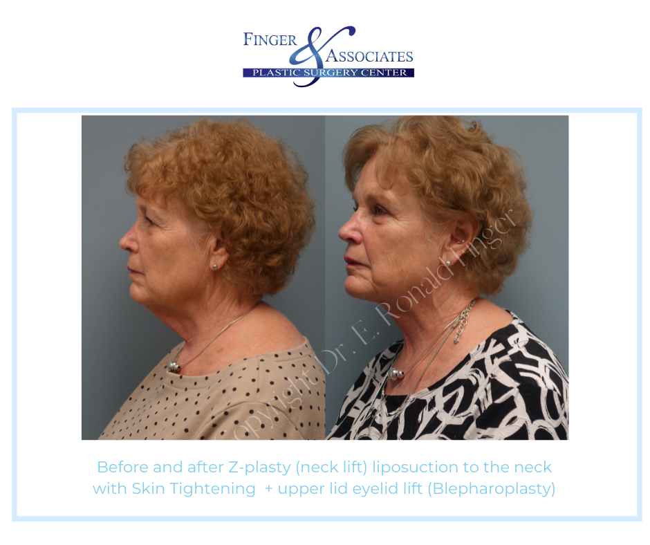 before and after neck liposuction and skin tightening
