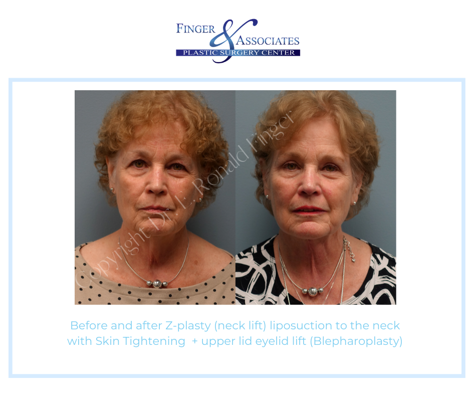Before and after zplasty and neck liposuction as well as blepharoplasty