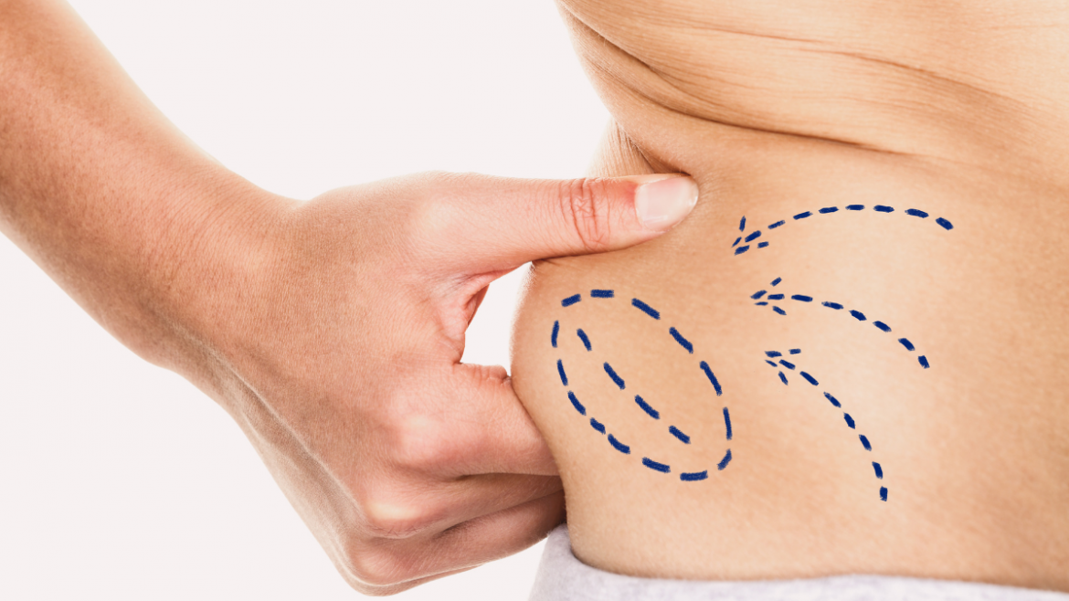 Is Liposuction Right For Your_ - Finger and Associates