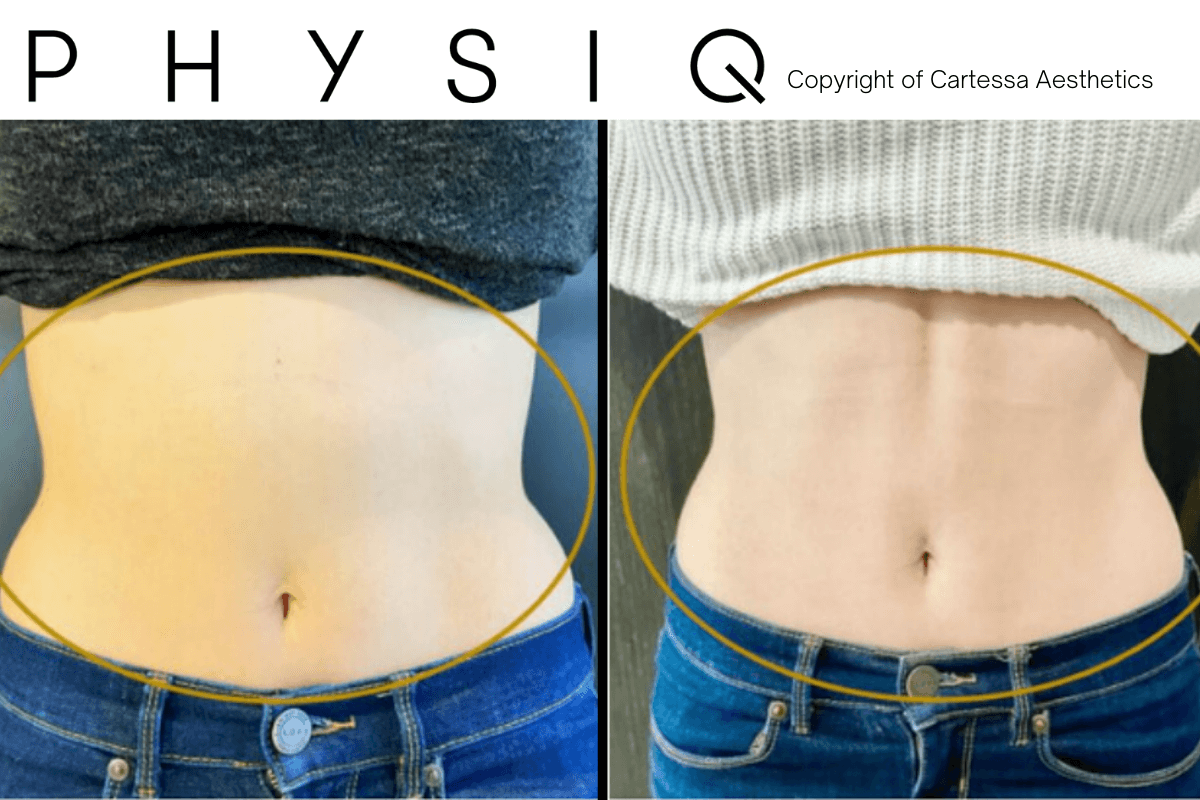 Before and After Physiq body treatment offered at New Youth Med Spa