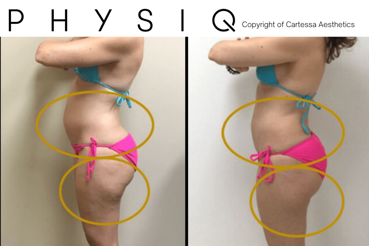 Before and After PHYSIQ treatment offered at Finger and Associates in Savannah