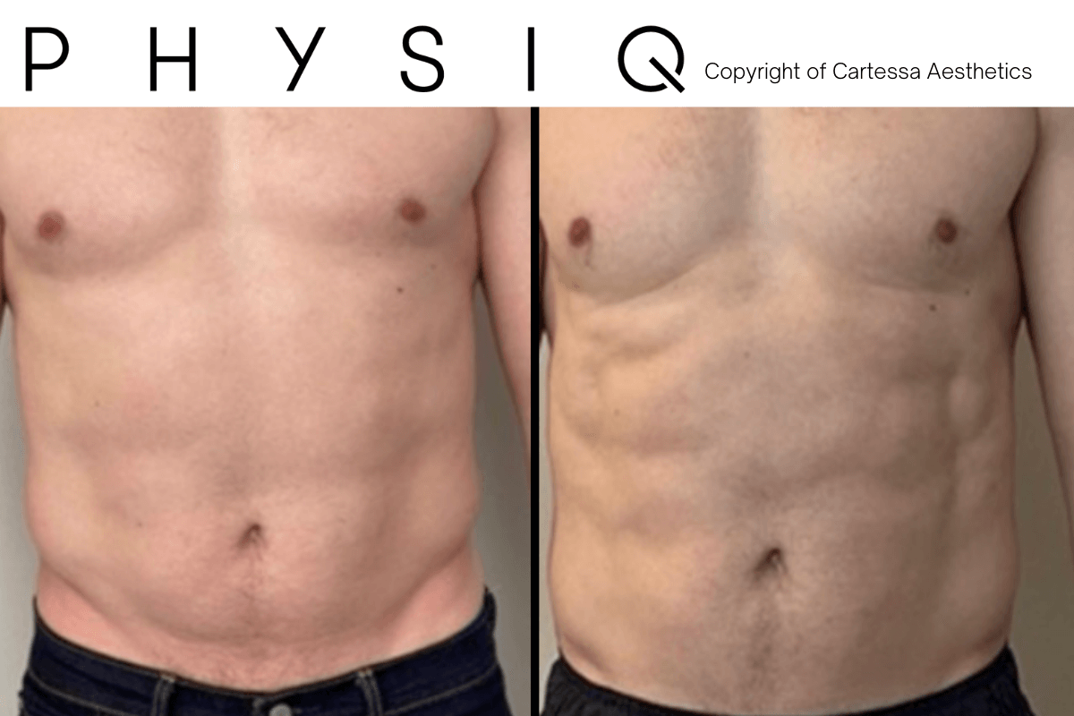 Before and After PHYSIQ treatment for body contouring now in Savannah with Dr. Ronald E. Finger