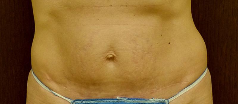 3 Weeks After Mini-Tummy-Skin Tuck