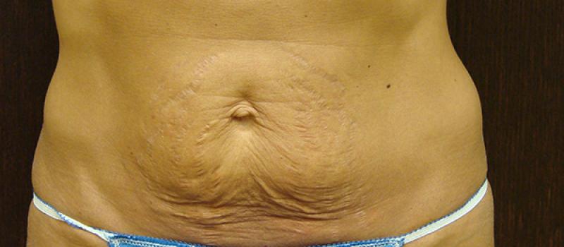 Before Mini-Tummy- Skin-Tuck